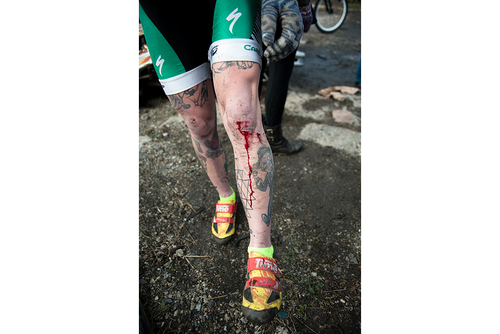 Racer wounds