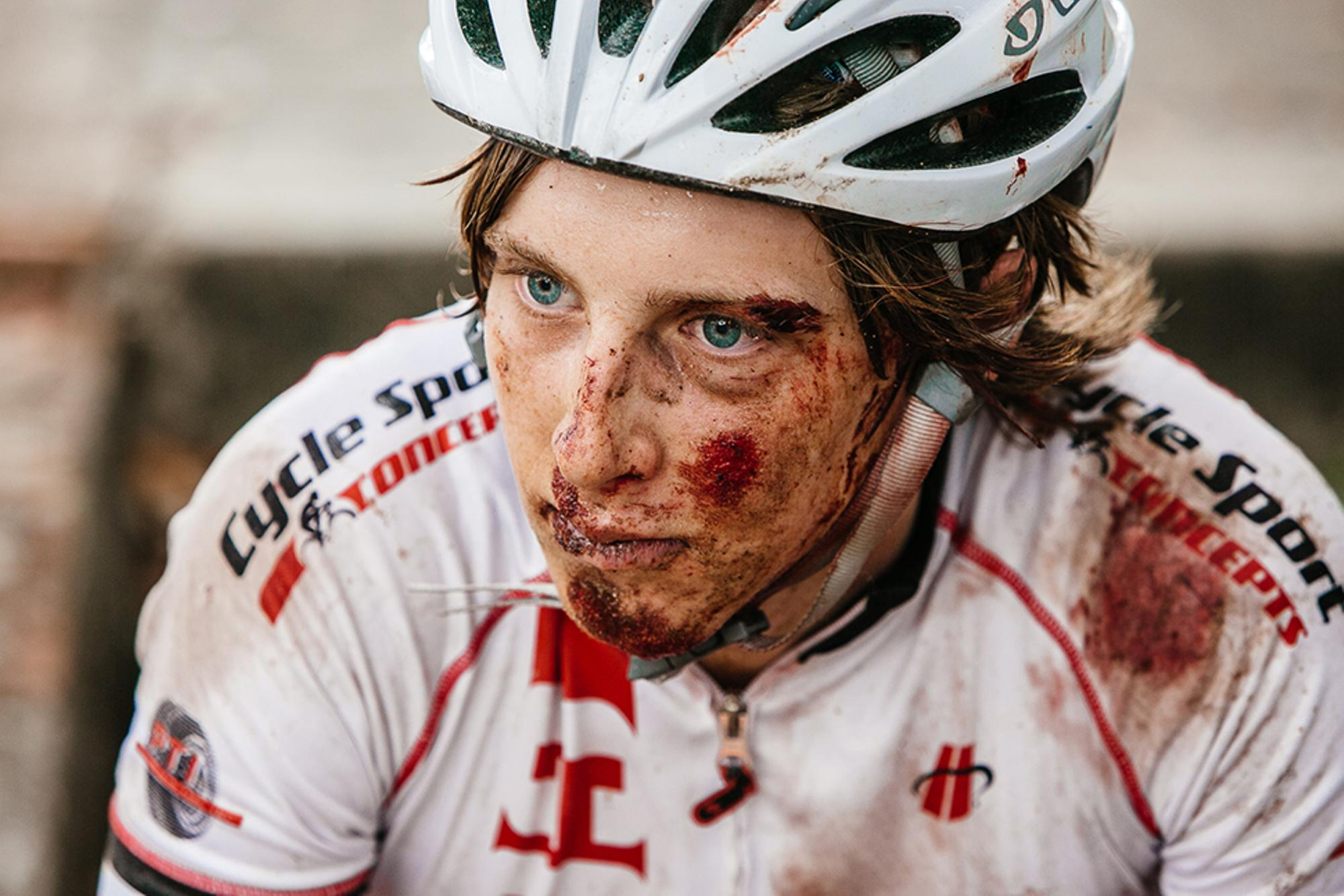 Mile 30, this guy slides out in gravel, cuts his brow, scrapes everything and finishes the 105 mile race. HTFU indeed...