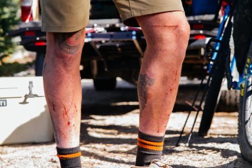 My legs.