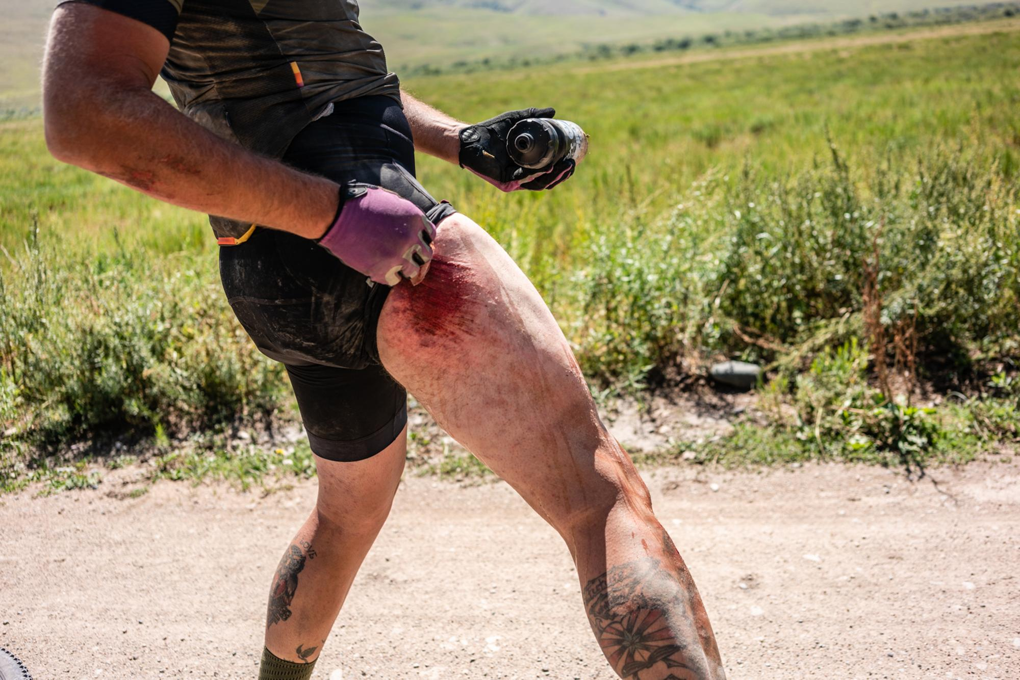 Gravel road rash